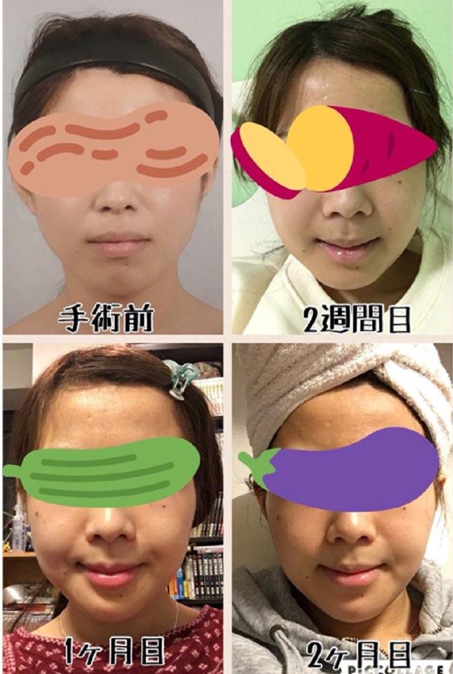 """Ca """"đập mặt xây lại"""" tốn 1,5 tỷ đồng của hot girl Nhật Bản - 8"""