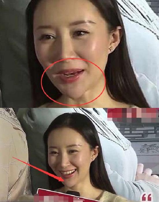 Lộ bằng chứng tiêm mặt của nhiều mỹ nhân Trung Quốc - 7