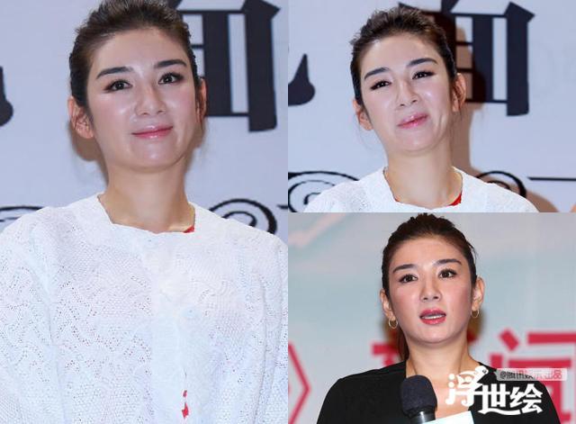 Lộ bằng chứng tiêm mặt của nhiều mỹ nhân Trung Quốc - 3