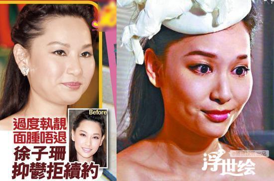 Lộ bằng chứng tiêm mặt của nhiều mỹ nhân Trung Quốc - 8