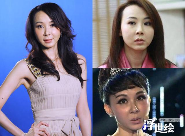 Lộ bằng chứng tiêm mặt của nhiều mỹ nhân Trung Quốc - 9