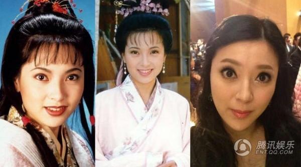 Lộ bằng chứng tiêm mặt của nhiều mỹ nhân Trung Quốc - 10