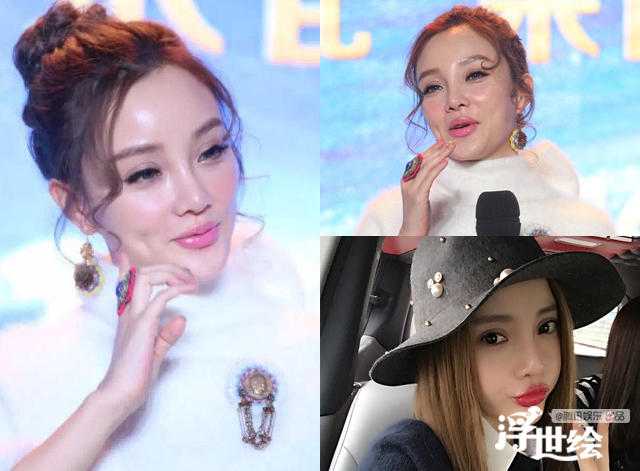 Lộ bằng chứng tiêm mặt của nhiều mỹ nhân Trung Quốc - 4