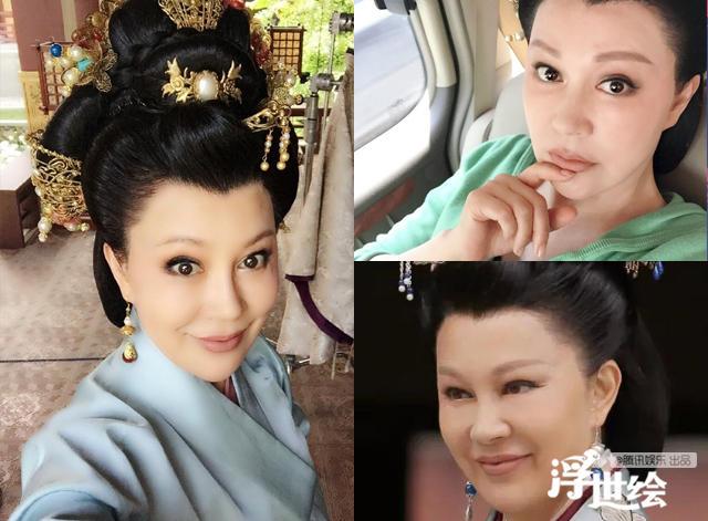 Lộ bằng chứng tiêm mặt của nhiều mỹ nhân Trung Quốc - 11