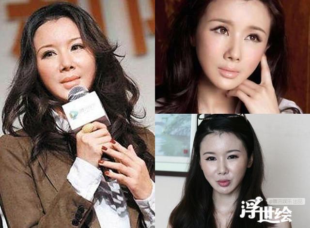 Lộ bằng chứng tiêm mặt của nhiều mỹ nhân Trung Quốc - 2