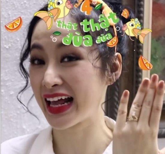 """Tình cũ Trường Giang """"dao kéo"""" lần 6 để có mũi Song Hee Kyo - 7"""