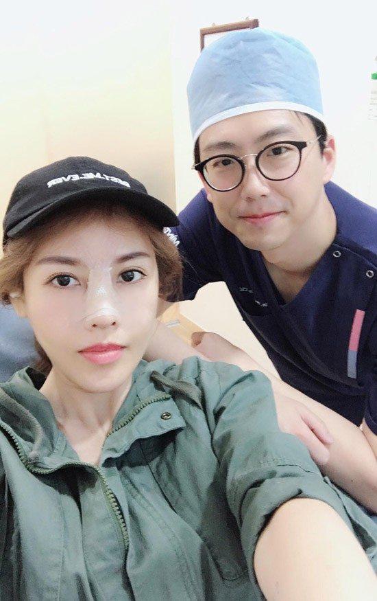 """Tình cũ Trường Giang """"dao kéo"""" lần 6 để có mũi Song Hee Kyo - 2"""