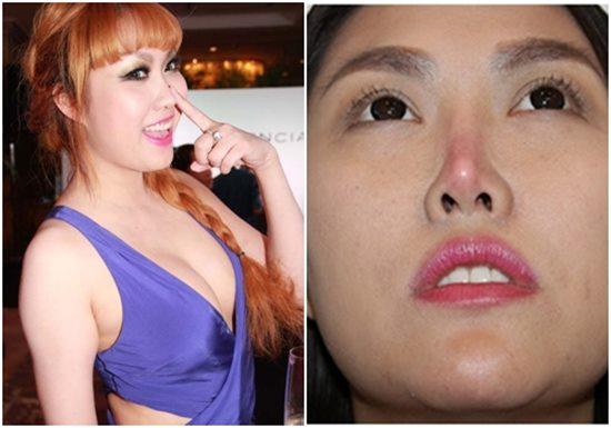"""Tình cũ Trường Giang """"dao kéo"""" lần 6 để có mũi Song Hee Kyo - 6"""