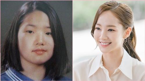 """6 """"siêu phẩm phẫu thuật thẩm mỹ"""" đẹp xuất sắc ở xứ Hàn - 2"""