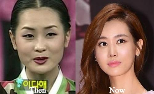 """6 """"siêu phẩm phẫu thuật thẩm mỹ"""" đẹp xuất sắc ở xứ Hàn - 7"""