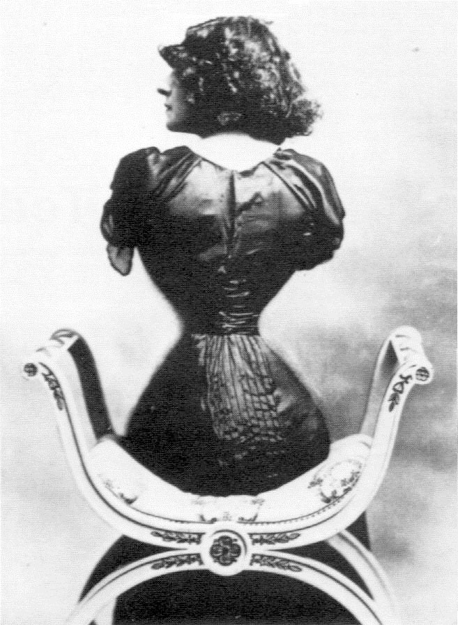 Lý do người đàn bà Pháp có eo nhỏ 40cm bị chê xấu nhất thế giới - 5