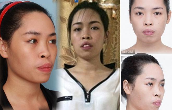 """3 """"siêu phẩm phẫu thuật thẩm mỹ"""" xứ Việt đẹp không thua gì Hàn Quốc - 2"""